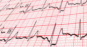 Cardiogram by CU Stock Photo