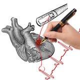 Cardiogram di attacco di cuore e di battimenti di cuore fotografia stock libera da diritti