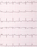 Cardiogram di battimenti di cuore fotografia stock libera da diritti