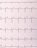 Cardiogram di battimenti di cuore fotografia stock