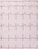 Cardiogram di battimenti di cuore immagini stock libere da diritti