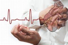 Cardiogram do cardíaco de ataque e das batidas de coração Fotos de Stock Royalty Free