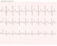 Cardiogram fotografie stock libere da diritti