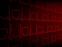 Cardiogram EKG. EPS 8 Stock Photo