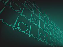 Cardiogram EKG. EPS 8 Royalty Free Stock Photos