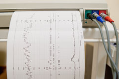 Cardiogram Ekg heart pulse on the graph paper. Cardiogram Ekg heart pulse results on the paper Royalty Free Stock Photography