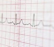 cardiogram imagens de stock royalty free