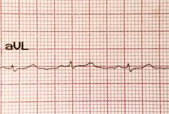 cardiogram imagem de stock