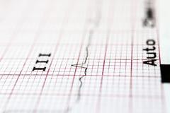 cardiogram foto de stock royalty free