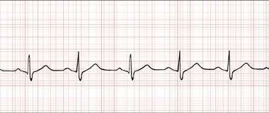 Cardiogram elettronico   Immagine Stock
