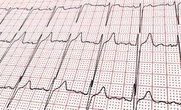 cardiogram Fragmento do resultado de pesquisa pelo CU imagens de stock