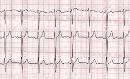 cardiogram Fragmento do resultado de pesquisa pelo CU fotografia de stock royalty free