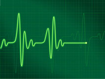 Cardiogram green. All elements are separate objects and grouped. File is made with gradient & mesh. No transparency Vector Illustration