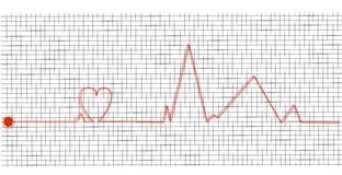 Cardiogram- heart beat Royalty Free Stock Photography