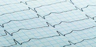 Cardiogram of heart beat. Cardiogram (aka electrocardiogram, aka ECG) of heart beat on blue grid paper stock photos