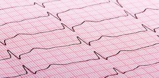 Cardiogram of heart beat. Cardiogram (aka electrocardiogram, aka ECG) of heart beat on red paper stock photos