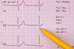 Cardiogram of heart beat Stock Photo