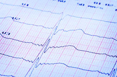 Cardiogram of heart on paper. Royalty Free Stock Photo