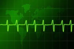 Cardiogram heart rhythm1 Royalty Free Stock Image