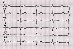 cardiogram heartbeat El gr?fico en el papel cuadriculado ilustración del vector