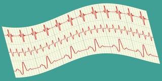 Cardiogram Royalty Free Stock Photography