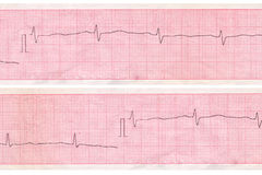 Cardiogram. Inneranalysenentwurf Stockbild
