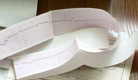 Cardiogram and medical history of the patient Stock Images