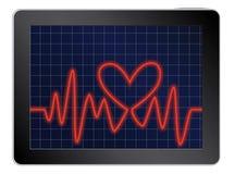 Cardiogram met hart op een tablet Stock Foto