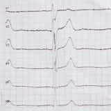 Cardiogram op papier Toont harttarief Stock Afbeeldingen