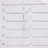 Cardiogram on paper. Shows heart rate. Cardiogram on paper. Shows heart rate monitor stock images