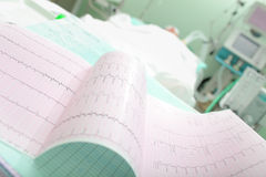 Cardiogram of a patient with acute cardiovascular failure Royalty Free Stock Photos