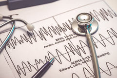 Cardiogram pulse trace and stethoscope concept for cardiovascula Stock Photos