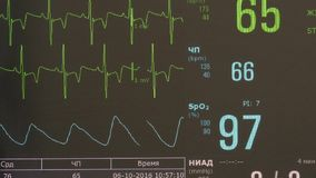 Cardiogram of rhythm of heart and pulse image on monitor during operation. Professional work of surgeon doctor stock video footage