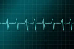 Cardiogram  ritm illustration. Royalty Free Stock Photo