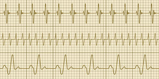 Cardiogram Royalty Free Stock Photography