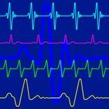 Cardiogram Stock Photos
