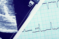 Cardiogram and ultrasound scan Stock Photo