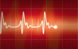 Cardiograma Imagen de archivo
