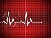 Cardiograma Fotografía de archivo libre de regalías
