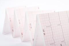 Cardiograma Imagenes de archivo
