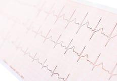 Cardiograma Fotos de archivo