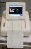 Cardiograma Fotos de archivo libres de regalías