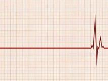 Cardiograma Fotografía de archivo