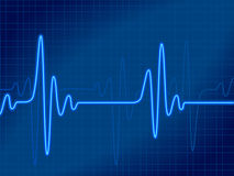 Cardiograma azul Foto de archivo libre de regalías