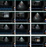 Cardiograma de la generación de eco Imagen de archivo libre de regalías
