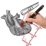 Cardiograma del ataque del corazón y de los golpes de corazón fotografía de archivo libre de regalías