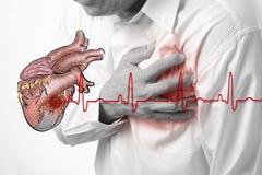 Cardiograma del ataque del corazón y de los golpes de corazón Imagenes de archivo