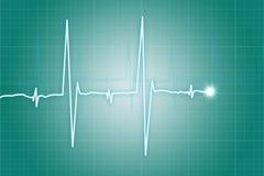Cardiograma del golpe de corazón Foto de archivo libre de regalías