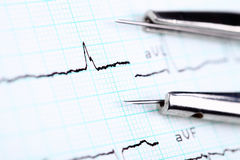 Cardiogramae um compasso Fotos de Stock Royalty Free