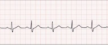 Cardiograma electrónico   Imagen de archivo